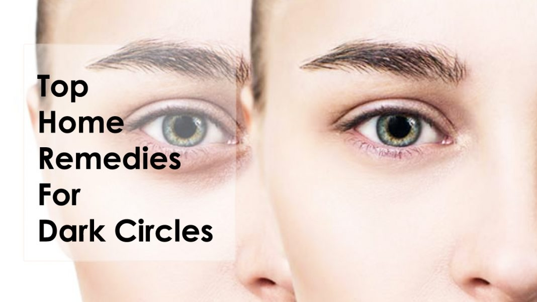 Top Home Remedies For Dark Circles
