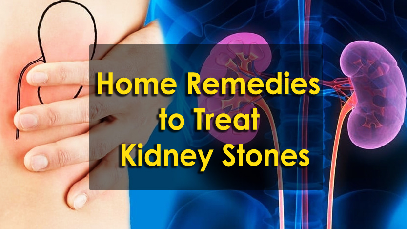 how to pass kidney stones fast